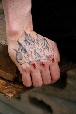 Tatts Bruises: Mild SFX