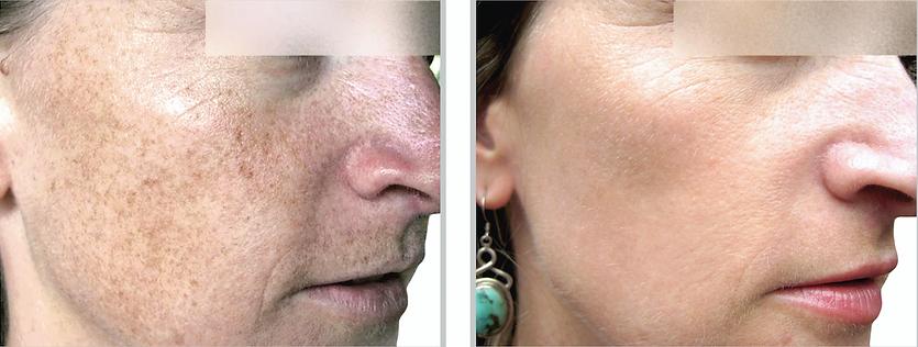 brown spots, clear skin, skin treatment,  sun damage, smooth skin, clear skin, chicago, chicago surgeon, chicago doctor, skin treatment, bbl, broadband light