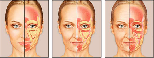 The aging face, anti-aging, fat loss, fat trasfer, fat transfer to face, collagen, collagen loss, facial fillers, injections, chicago, chicago loop, chicago doctor, cosmetic surgeon, surgery, cosmetics, plastic surgeon, platics, chicago facal plastic surgeon