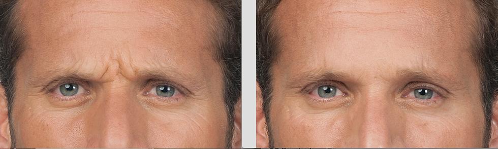 forehead, wrinkles, botox, dysport, forehead lines