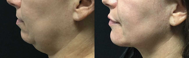 new jawline, double chin correction and non invasive chin enhancement