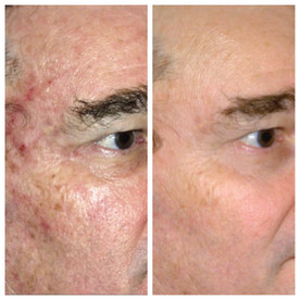 PritiSkin - Laser Resurfacing Chicago, IL