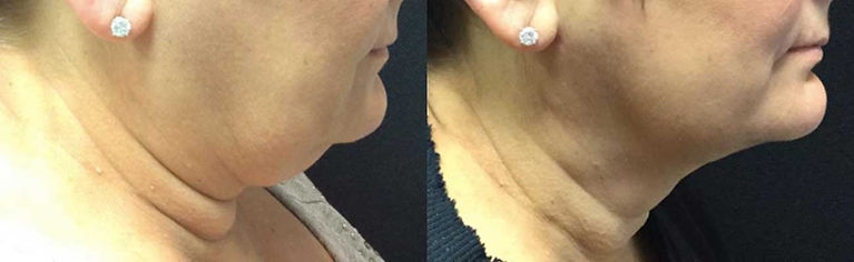 Full Neck, double chin, smart lipo, jawline, antiaging