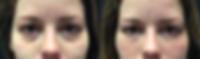 Under eye circles, eyes, dark circles, filler, facial filler