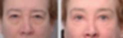 ptosis repair, droopy lids, under eye wrinkes, crepey skin