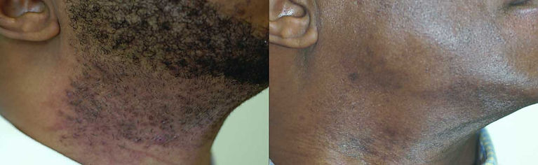 unwanted hair, facial hair, body hair, brazilian, hair removal, laser hair removal