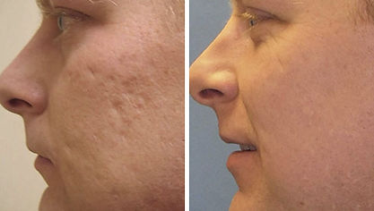 acne, acne scars, filler, skin treatment, smooth skin, unwanted scars