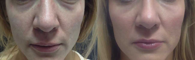 flat cheeks, skin rejuvination, facial fillers, master injector