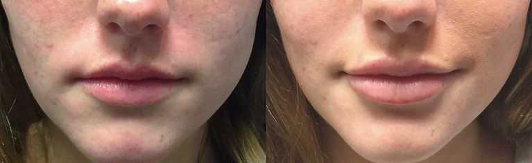 lip filler, filler, lips, full lips, lip injections, master injector, chicago injector