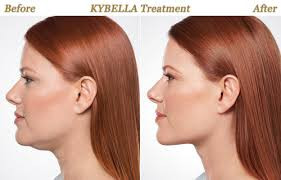 Kybella before and after under chin