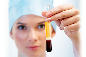 prp tube color.png