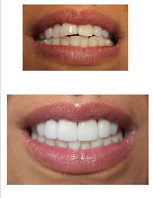 cosmetic makeover at SmileSketchBoston