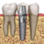 Implants