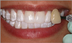 Kor Whitening befor and after