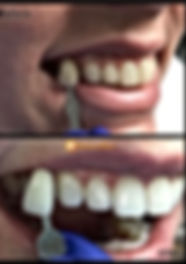 Kor Whitening before and after