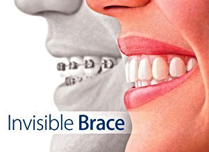 Clear Braces Treatment