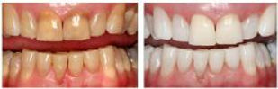 kor-whitening-smiles-2 (1).jpg