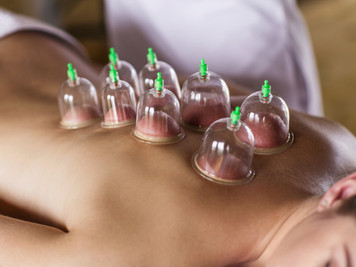 How Cupping can Help You