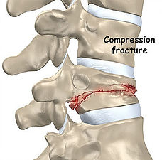 Fratura por Osteoporose.jpg