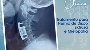 CASO CLÍNICO | Tratamento para Hérnia de Disco Extrusa e Mielopatia