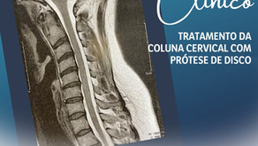 CASO CLÍNICO | Tratamento da coluna cervical com prótese de disco