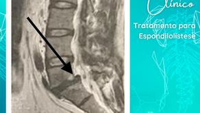 CASO CLÍNICO | Tratamento para espondilolistese