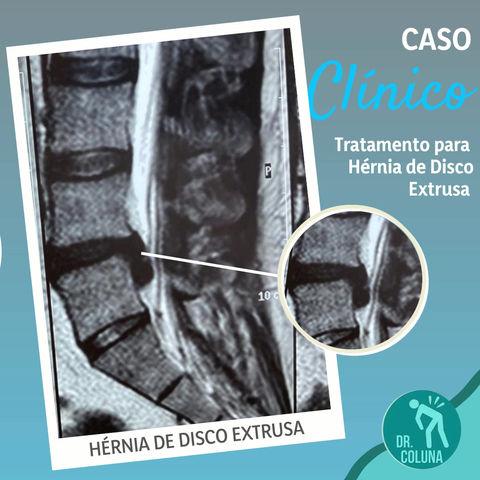 CASO CLÍNICO: Hérnia de disco extrusa