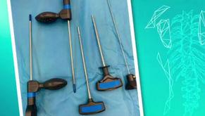 CASO CLÍNICO   Tratamento para Fratura Patológica de Corpo Vertebral