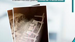 CASO CLÍNICO: Tratamento para Coluna Fraturada