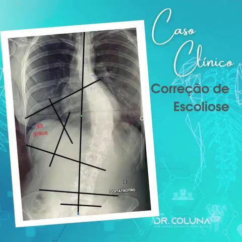 CASO CLÍNICO | Tratamento para escoliose