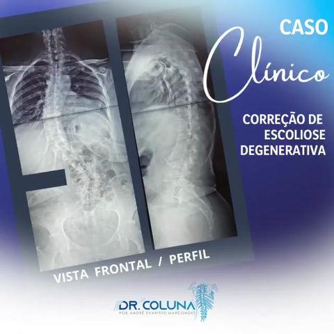 CASO CLÍNICO | Correção de Escoliose Degenerativa