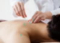 eletroacupuntura-acupuntura.png