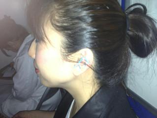 耳鍼灸初体験