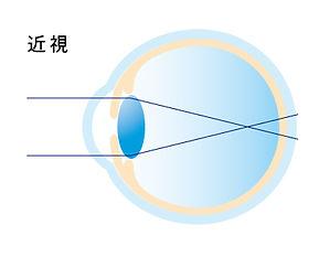屈折異常イメージ_アートボード 1 のコピー 4.jpg