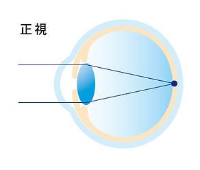 屈折異常イメージ_アートボード 1 のコピー 6.jpg