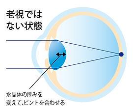 屈折異常イメージ_アートボード 1 のコピー 7.jpg