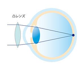 屈折異常イメージ_アートボード 1 のコピー 9.jpg