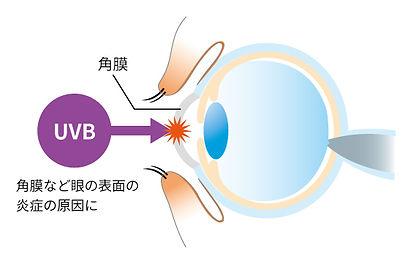 紫外線の話_眼球-3.jpg