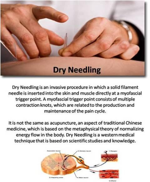 dry_needling_what_it_is_2.jpg