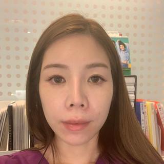前次手術鼻頭短、露鼻孔