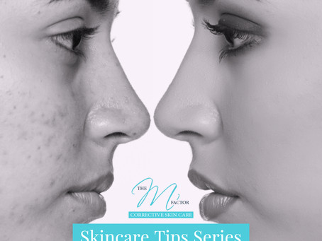 Acne Skin Care Series Tip 2 - Types of Acne