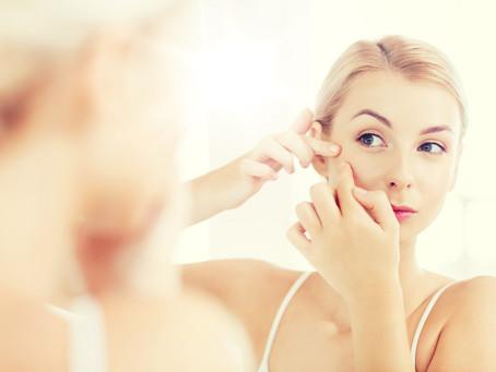 Don't Pop It! We Specialize in Acne Prone Skin