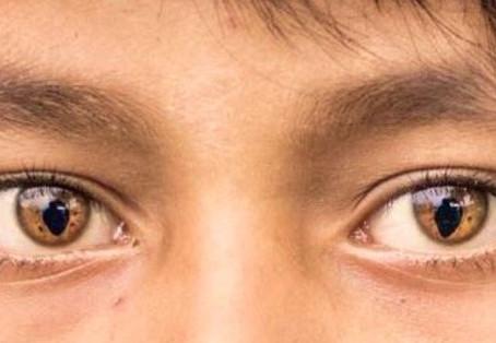 Kedi Gözü Sendromu Nedir ?