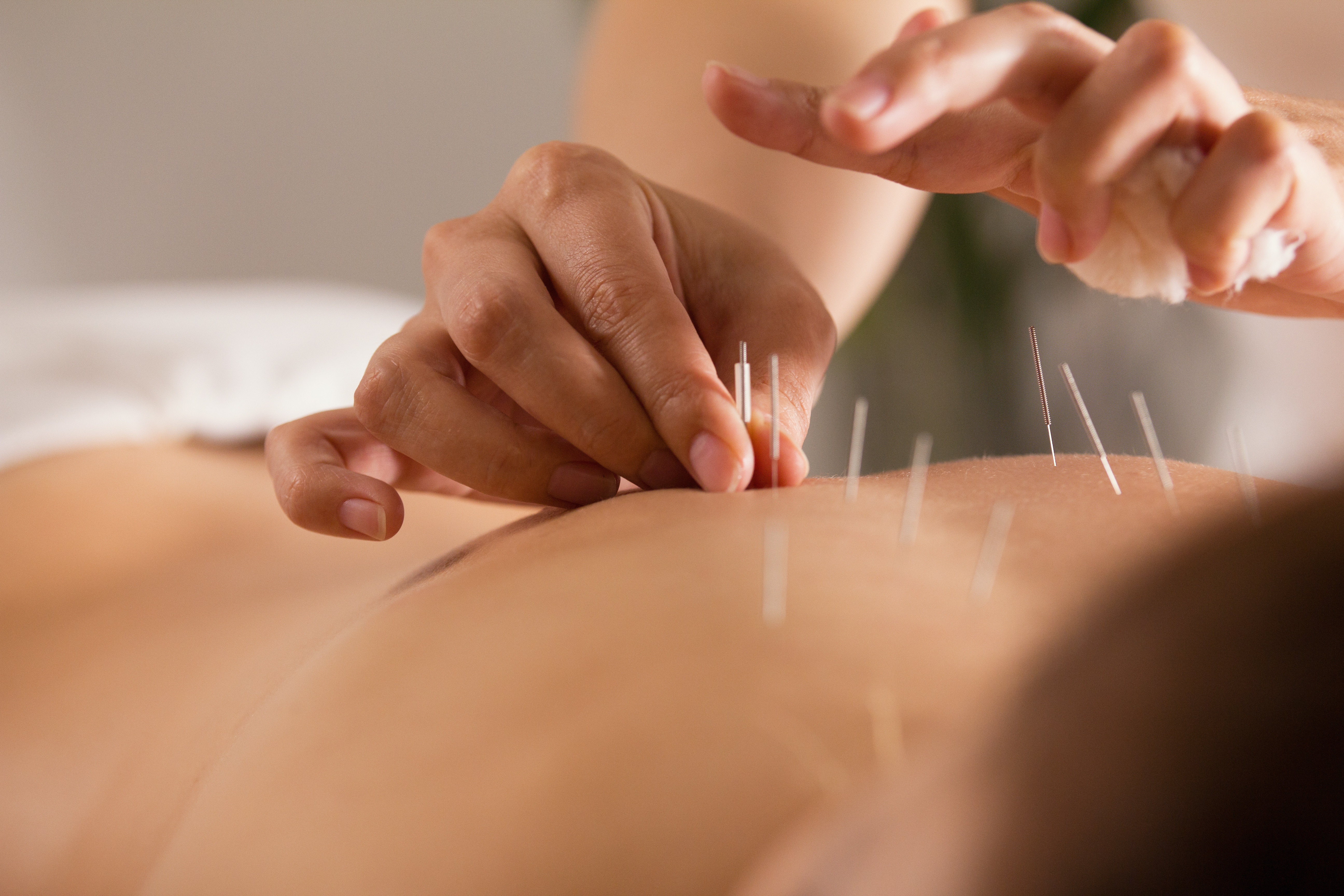Follow-up Acupuncture Session