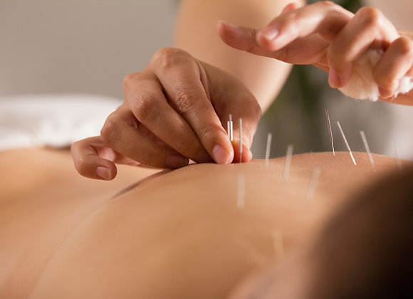 4 Acupuncture Treatments