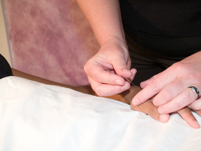 Acupuncture for Peaceful Mind & Restful Nights