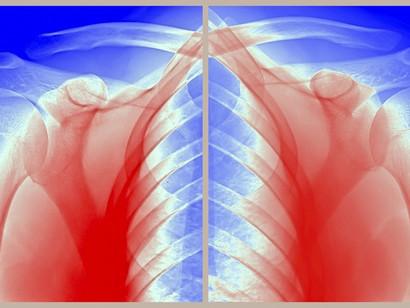Acupuncture for Frozen Shoulder