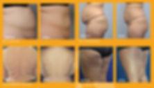 BodyFXBrochure_VBFPB12415-1-1024x583.jpg