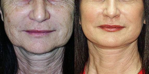 Laser-Skin-Resurfacing_Before-After-Phot