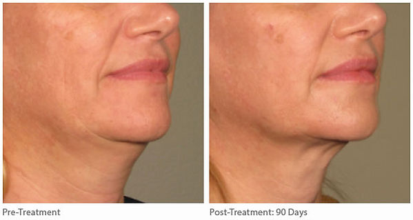 ultherapy-before-after-lower-face-9.jpg